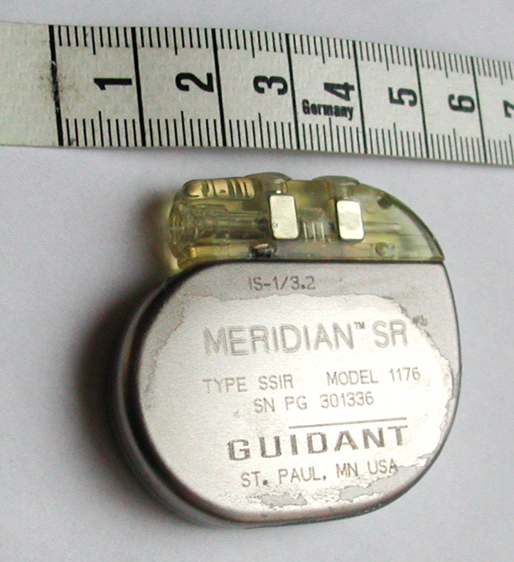 https://upload.wikimedia.org/wikipedia/commons/b/b1/Pacemaker_GuidantMeridianSR.jpg